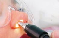 poliposi nasale intervento laser