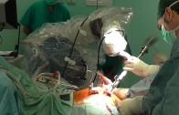 Entriamo in sala operatoria con il dott. Caldora